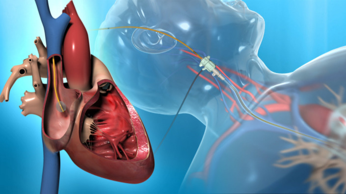 Project Right Heart Catheter