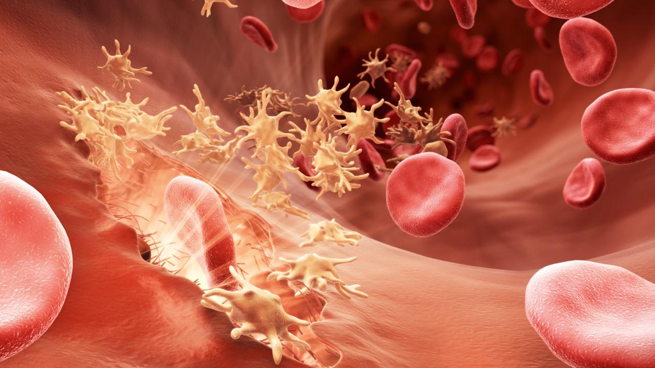 Understanding Hemophilia